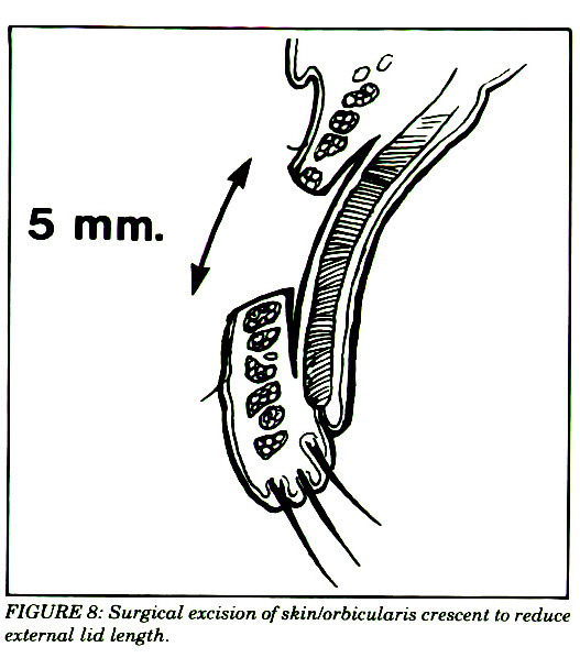 FIGURE 8: Surgical excision of skinlorbicularis crescent to reduce external lid length.