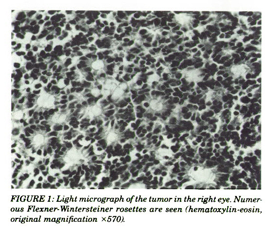 FIGURE 1: Light micrograph of the tumor in the right eye. Numerous Flexner-Wintersteiner rosettes are seen hematoxylin-easin, original magnification X570A