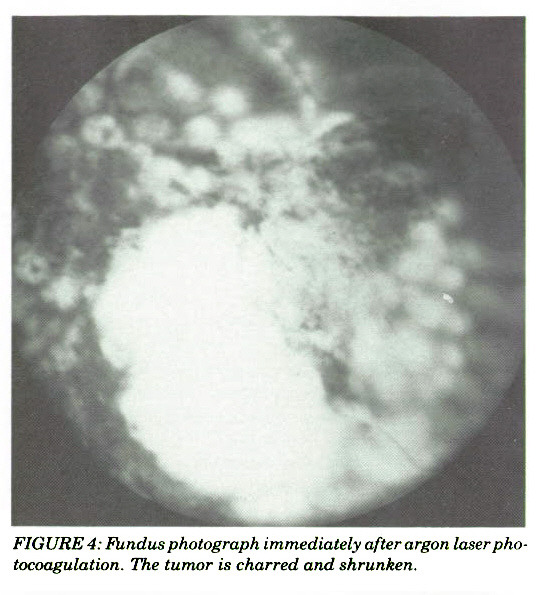 FIGURE 4; Fundus photograph immediately after argon laser photocoagulation. The tumor is charred and shrunken.