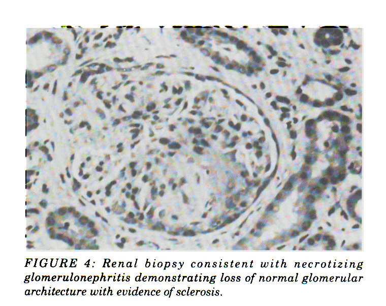 FIGURE 4: Renal biopsy consistent with necrotizing glomerulonephritis demonstrating loss of normal glomerular architecture with evidence of sclerosis.