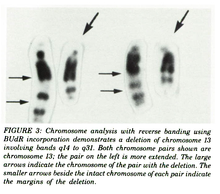 FIGURE 3: Chromosome analysis with reverse banding using BUdR incorporation demonstrates a deletion of chromosome 13 involving bands ql4 to q31. Both chromosome pairs shown are chromosome 13; the pair on the left is more extended. The large arrows indicate the chromosome of the pair with the deletion. The smaller arrows beside the intact chromosome of each pair indicate the margins of the deletion.