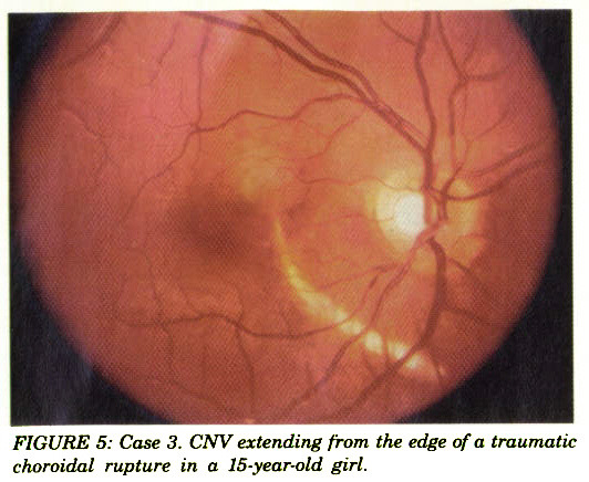 FIGURE 5: Case 3. CNV extending from the edge of a traumatic choroidal rupture in a 15-year-old girl.