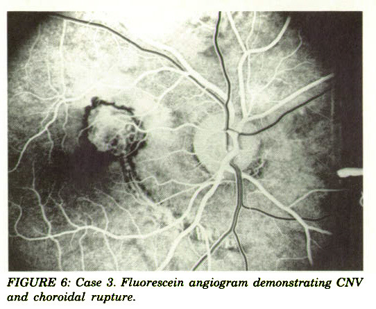 FIGURE 6: Case 3. Fluorescein angiogram demonstrating CNV and choroidal rupture.
