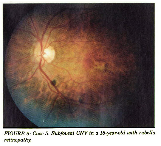 FIGURE 9: Case 5. Subfoveal CNV in a 18-year-old with rubella retinopathy.