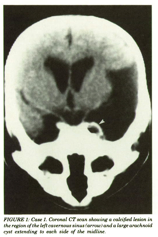 FIGURE 1: Case 1. Coronal CT scan showing a calcified lesion in the region of the left cavernous sinus (arrow) and a large arachnoid cyst extending to each side of the midline.