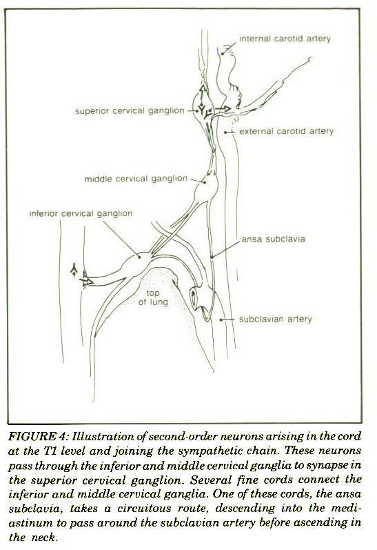 FIGURE 4: Illustration of second-order neurons arising in the cord at the T1 level and joining the sympathetic chain. These neurons pass through the inferior and middle cervical ganglia to synapse in the superior cervical ganglion. Several fine cords connect the inferior and middle cervical ganglia. One of these cords, the ansa subclavia, takes a circuitous route, descending into the mediastinum to pass around the subclavian artery before ascending in the neck.