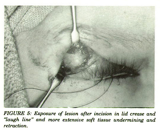 """FIGURE 5: Exposure of lesion after incision in lid crease and """"laugh line"""" and more extensive soft tissue undermining and retraction."""