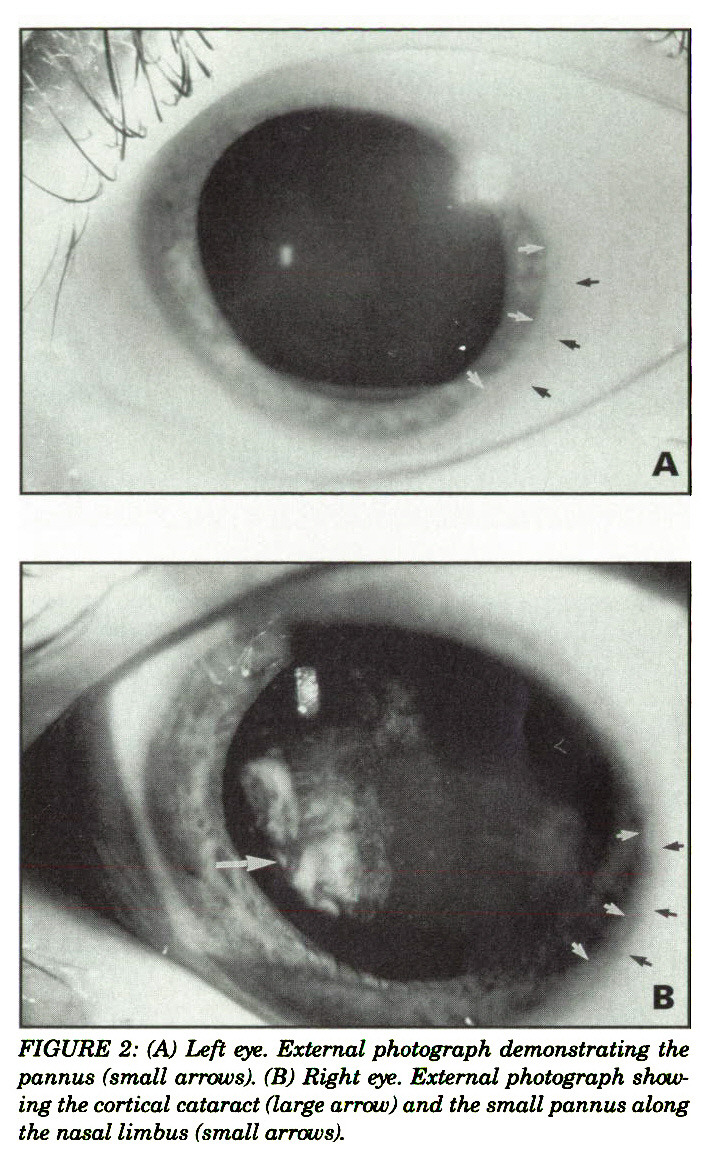 FIGURE 2: (A) Left eye. External photograph demonstrating the pannus (small arrows). (B) Right eye. External photograph showing the cortical cataract (large arrow) and the small pannus along the nasal limbus (small arrows).