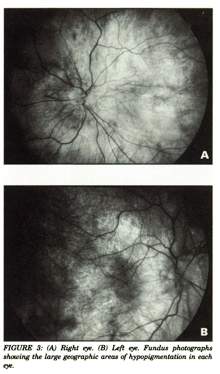 FIGURE 3: (A) Right eye. (B) Left eye. Fundus photographs showing the large geographic areas of hypopigmentation in each eye.