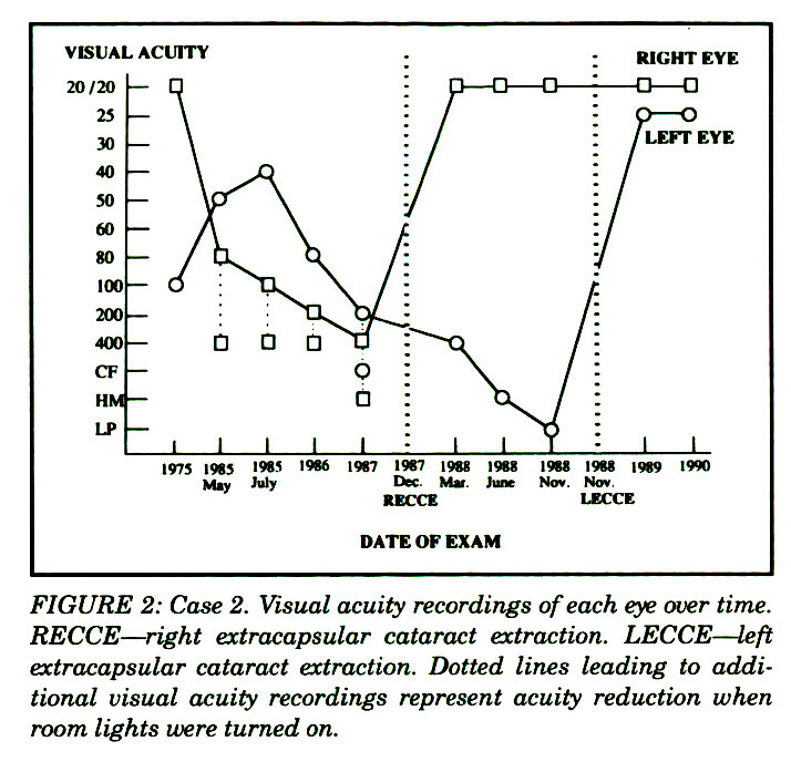 FIGURE 2: Case 2. Visual acuity recordings of each eye over time. RECCE - right extracapsular cataract extraction. LECCE - left extracapsular cataract extraction. Dotted lines leading to additional visual acuity recordings represent acuity reduction when room lights were turned on.