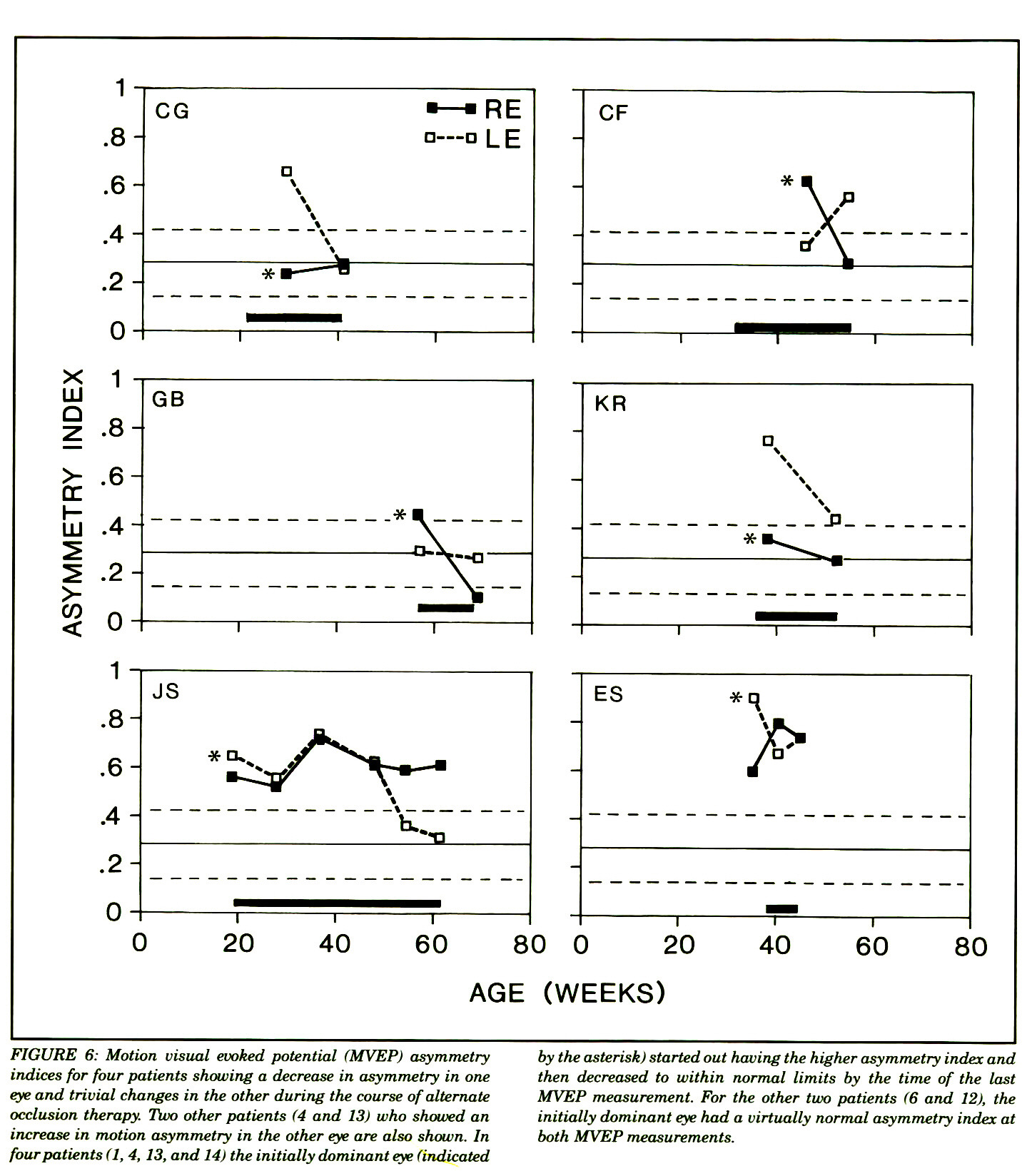 FIGURE 6: Motion visual evoked potential (MVEP) asymmetry indices for four patients showing a decrease in asymmetry in one eye and trivial changes in the other during the course of alternate occlusion therapy. Two other patients (4 and 13) who showed an increase in motion asymmetry in the other eye are also shown. In four patients (1, 4, 13, and 14) the initially dominant eye (indicated by the asterisk) started out having the higher asymmetry index and then decreased to within normal limits by the time of the last MVEP measurement. For the other two patients (6 and 12), the initially dominant eye had a virtually normal asymmetry index at both MVEP measurements.