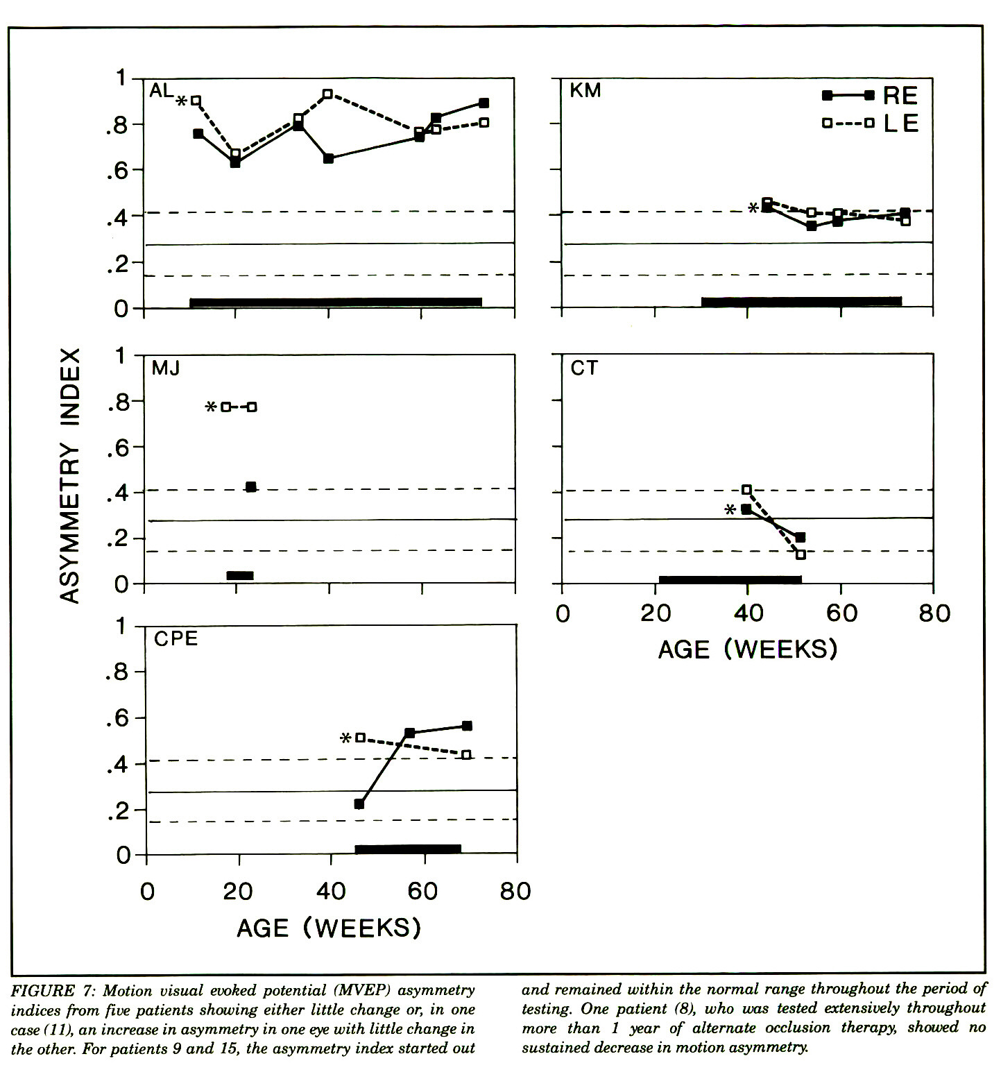 FIGURE 7: Motion visual evoked potential (MVEP) asymmetry indices from five patients showing either little change or, in one case (11), an increase in asymmetry in one eye with little change in the other. For patients 9 and 15, the asymmetry index started out and remained within the normal range throughout the period of testing. One patient (8), who was tested extensively throughout more than 1 year of alternate occlusion therapy, showed no sustained decrease in motion asymmetry.