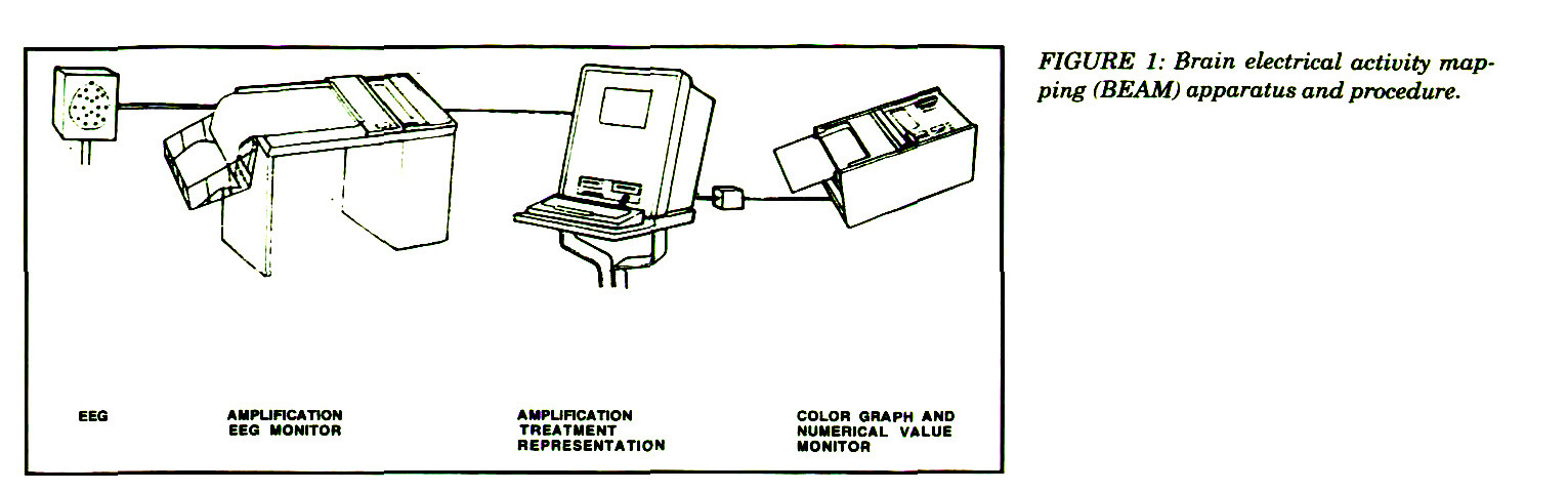 FIGURE 1: Brain electrical activity mapping (BEAM) apparatus and procedure.