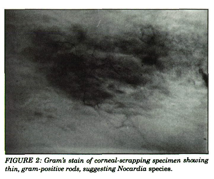 FIGURE 2: Gram's stain of corneal-scrapping specimen showing thin, gram-positive rods, suggesting Nocardia species.