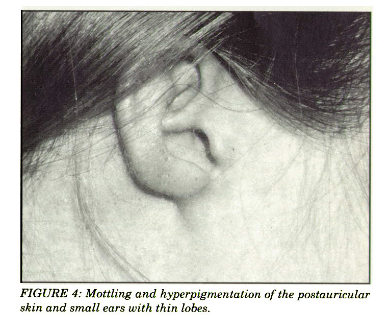 FIGURE 4: Mottling and hyperpigmentation of the postauricular skin and small ears with thin lobes.