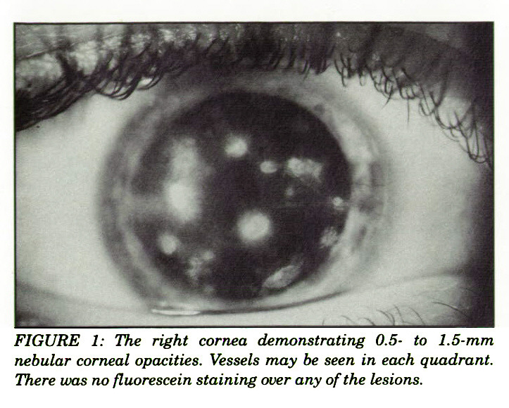FIGURE 1: The right cornea demonstrating 0.5- to 1.5-mm nebular corneal opacities. Vessels may be seen in each quadrant. There was no fluorescein staining over any of the lesions.