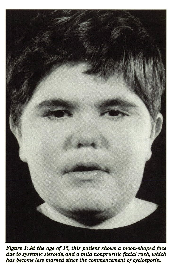 Figure 1:At the age of 15, this patient shows a moon-shaped face due to systemic steroids, and a mild nonpruritic facial rash, which has become less marked since the commencement of cyclosporin.