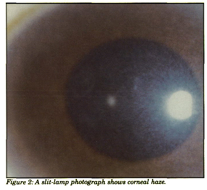 Figure 2: A slit-lamp photograph shows corneal haze.