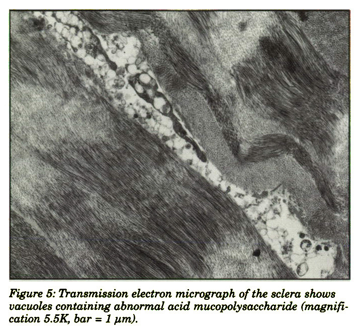 Figure 5: Transmission electron micrograph of the sclera shows vacuoles containing abnormal acid mucopolysaccharide (magnification 5.5K bar = 1 pm).