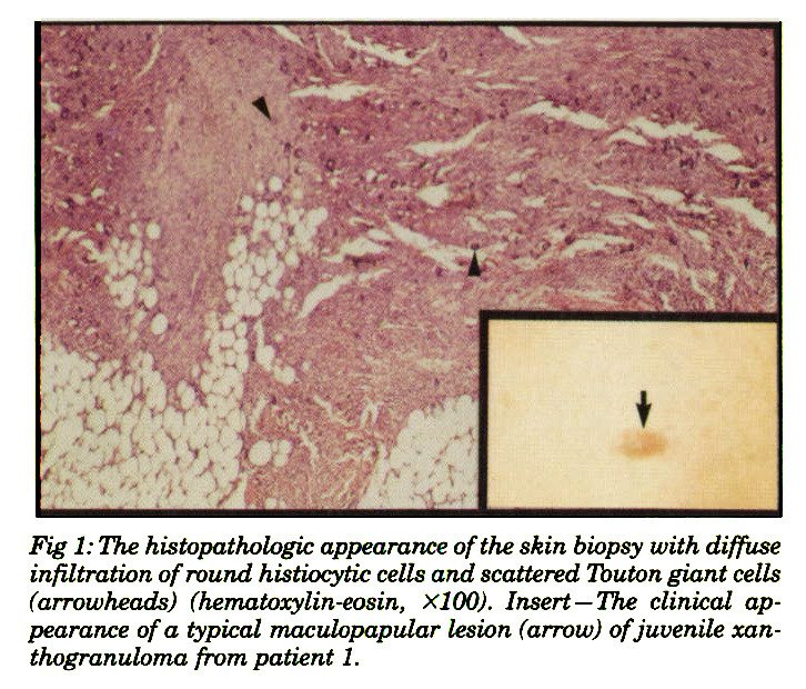 Fig 1: The histopathologic appearance of the skin biopsy with diffuse infiltration of round histiocytic cells and scattered lbuton giant cells (arrowheads) (hematoxylin-eosin, XlOO). Insert - The clinical appearance of a typical maculopapular lesion (arrow) of juvenile xanthogranuloma from patient 1.
