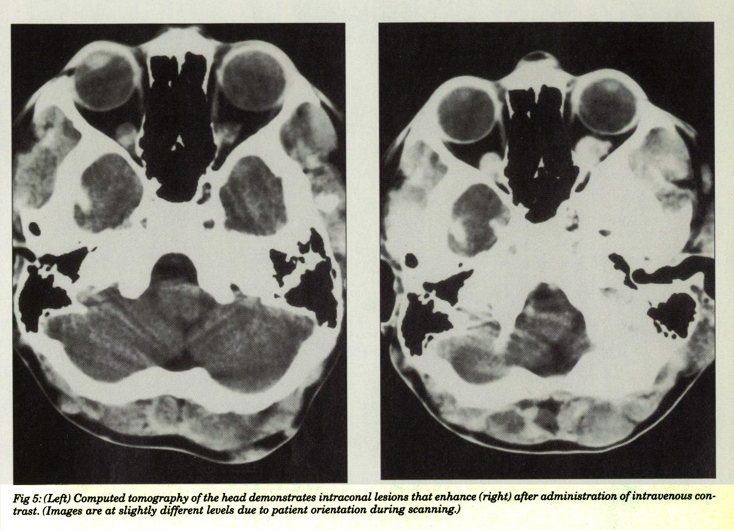 Fig 5: (Left) Computed tomography of the head demonstrates intraconal lesions that enhance (right) after administration of intravenous contrast. (Images are at slightly different levels due to patient orientation during scanning.)