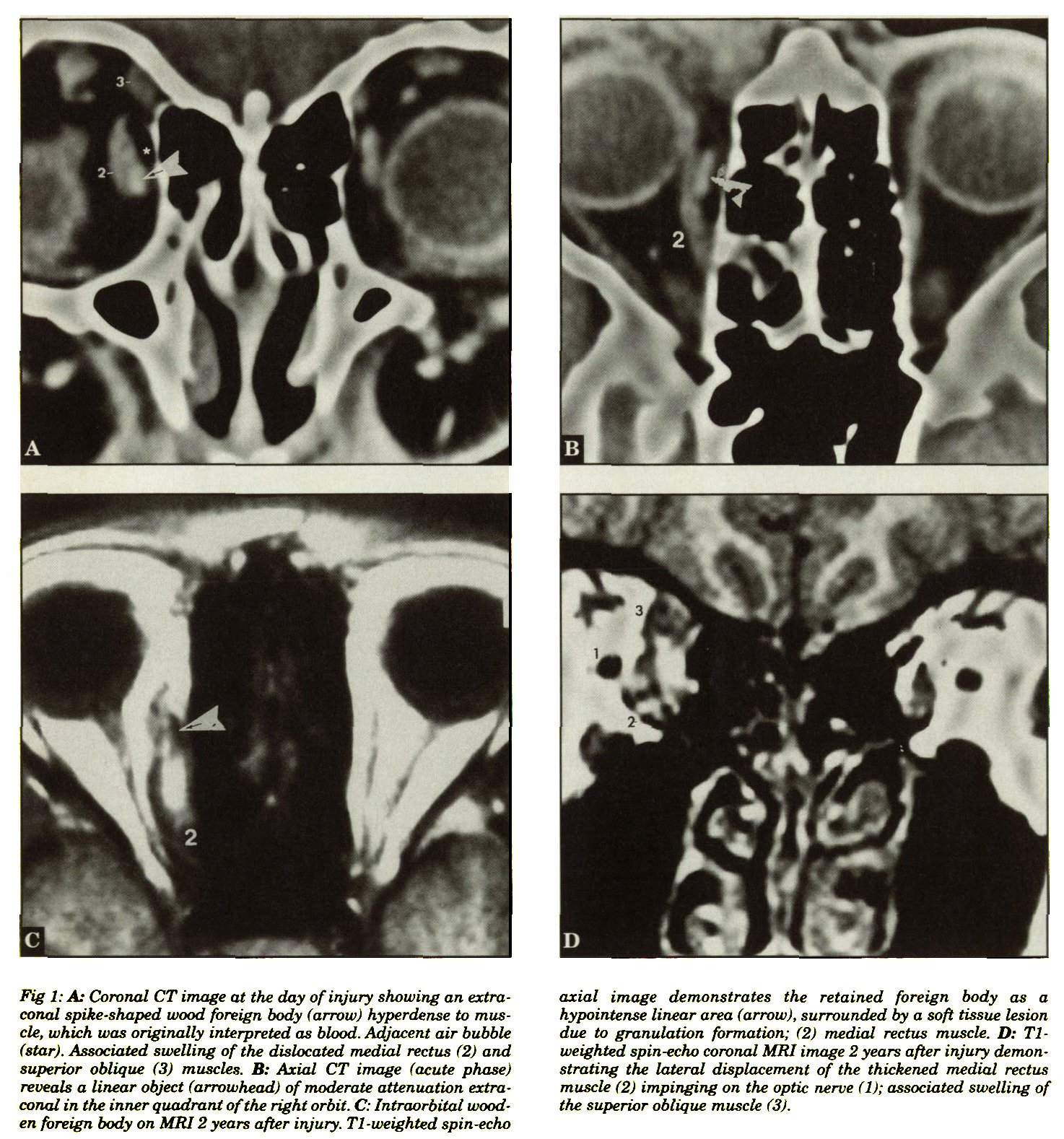 Optic Atrophy Induced by an Intraorbital Wooden Foreign Body
