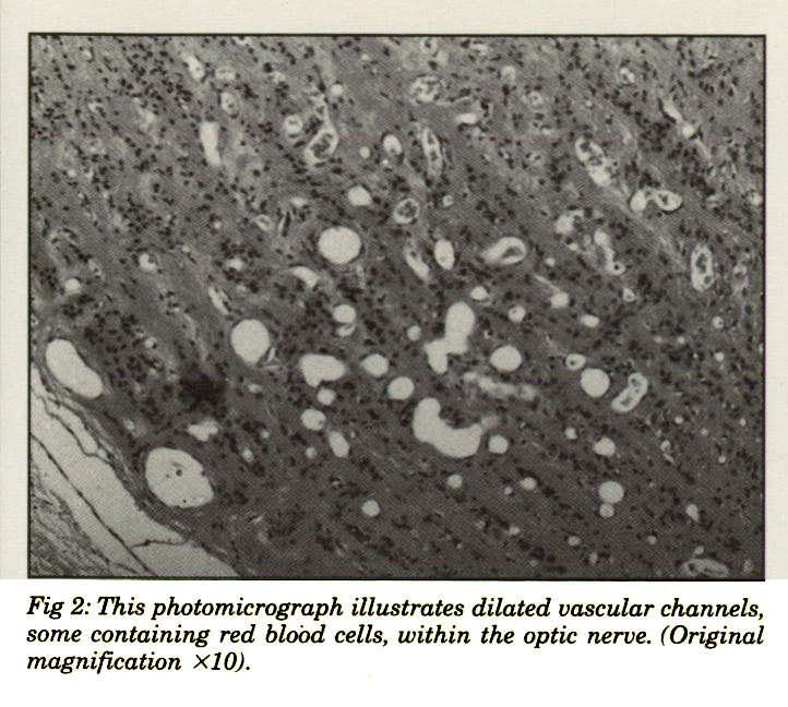 Fig 2: This photomicrograph illustrates dilated vascular channels, some containing red blood cells, within the optic nerve. (Original magnification x10).