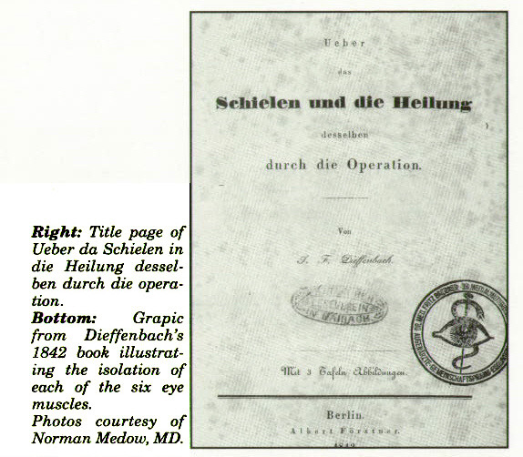 Right: Title page of Ueber da Schielen in die Heilung desselben durch die operation.