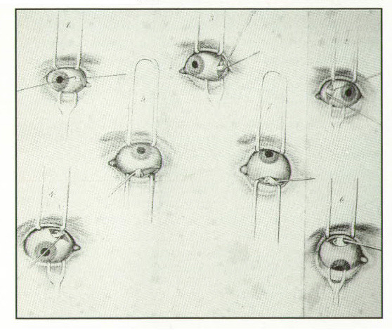 Bottom: Grapic from Dieffenbach's 1842 book illustrating the isolation of each of the six eye muscles.Photos courtesy of Norman Medow, MD.