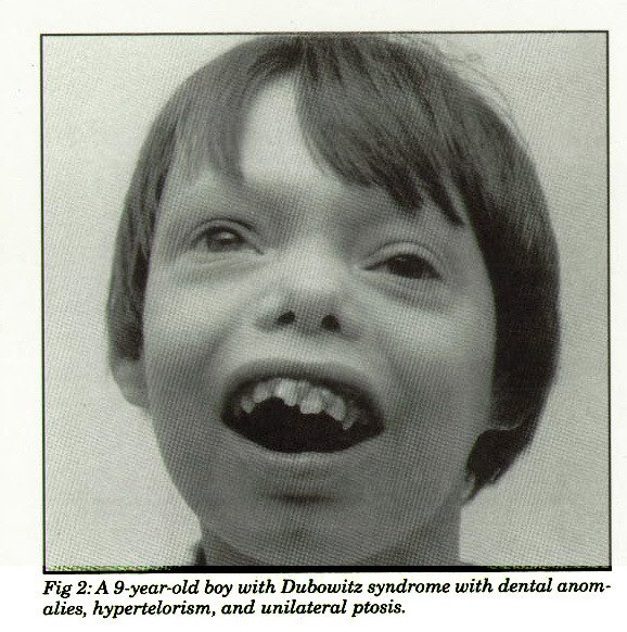 Fig 2: A 9-year-old boy with Dubowitz syndrome with dental anomalies, hypertelorism, and unilateral ptosis.