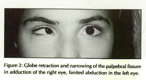 Figure 2: Globe retraction and narrowing of the palpebrai fissure in adduction of the right eye, limited abduction in the left eye.