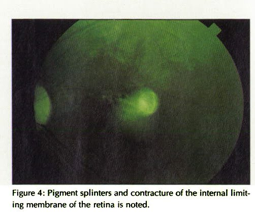 Figure 4: Pigment splinters and contracture of the internal limiting membrane of the retina is noted.