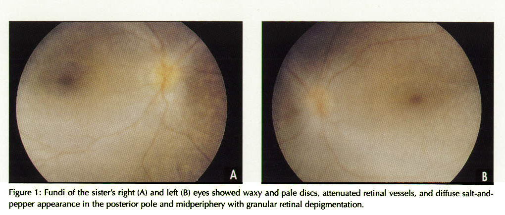 Figure 1 : Fundi of the sister's right (A) and left (B) eyes showed waxy and pale discs, attenuated retinal vessels, and diffuse salt-andpepper appearance In the posterior pole and midperiphery with granular retinal depigmentation.