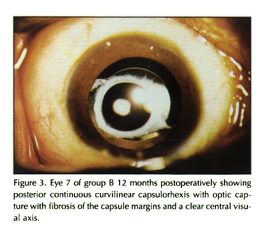 Figure 3. Eye 7 of group B 12 months postopera ti ve I y showing posterior continuous curvilinear capsulorhexis with optic capture with fibrosis of the capsule margins and a clear central visual axis.