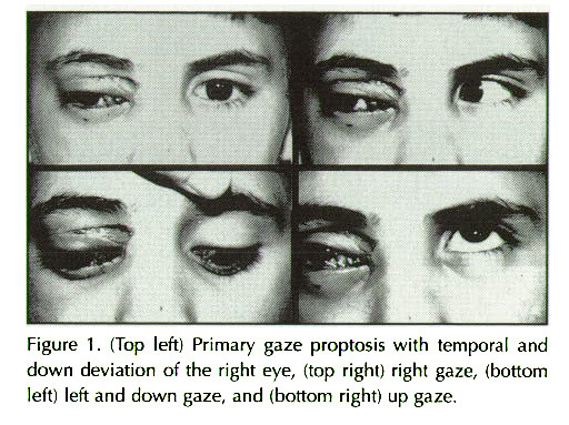Figure 1. (Top left) Primary gaze proptosis with temporal and down deviation of the right eye, (top righi) righi gaze, (bottom left) left and down gaze, and bottom right) up gaze.