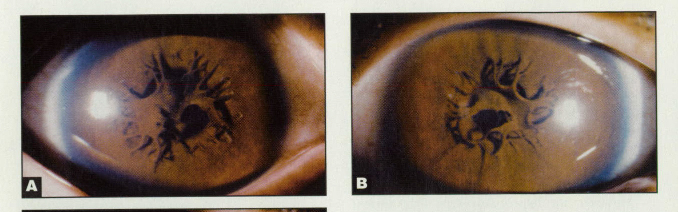 Figure. Patient 15: (A) right eye preoperatively; (B) left eye preoperatively; and (C) left eye postoperatively. The patient was first examined in our clinic when he was 5.9 years old. His vision was 20/30 (right eye) and finger counting at 20 cm (left eye). His fundus showed no specific abnormality (right eye) and myopic degeneration (left eye). The pupillary membranes in both eyes appeared to be similar. His amblyopia might have been caused by severe spherical myopic anisometropia and myopic degeneration. His left eye underwent surgery and occlusion therapy. His refractive status was emmetropia (right eye) and -14.5 sphere -2.5 cylinder x 180° (left eye) after surgery. His left final bestcorrected visual acuity 2.8 years after treatment was 20/100.