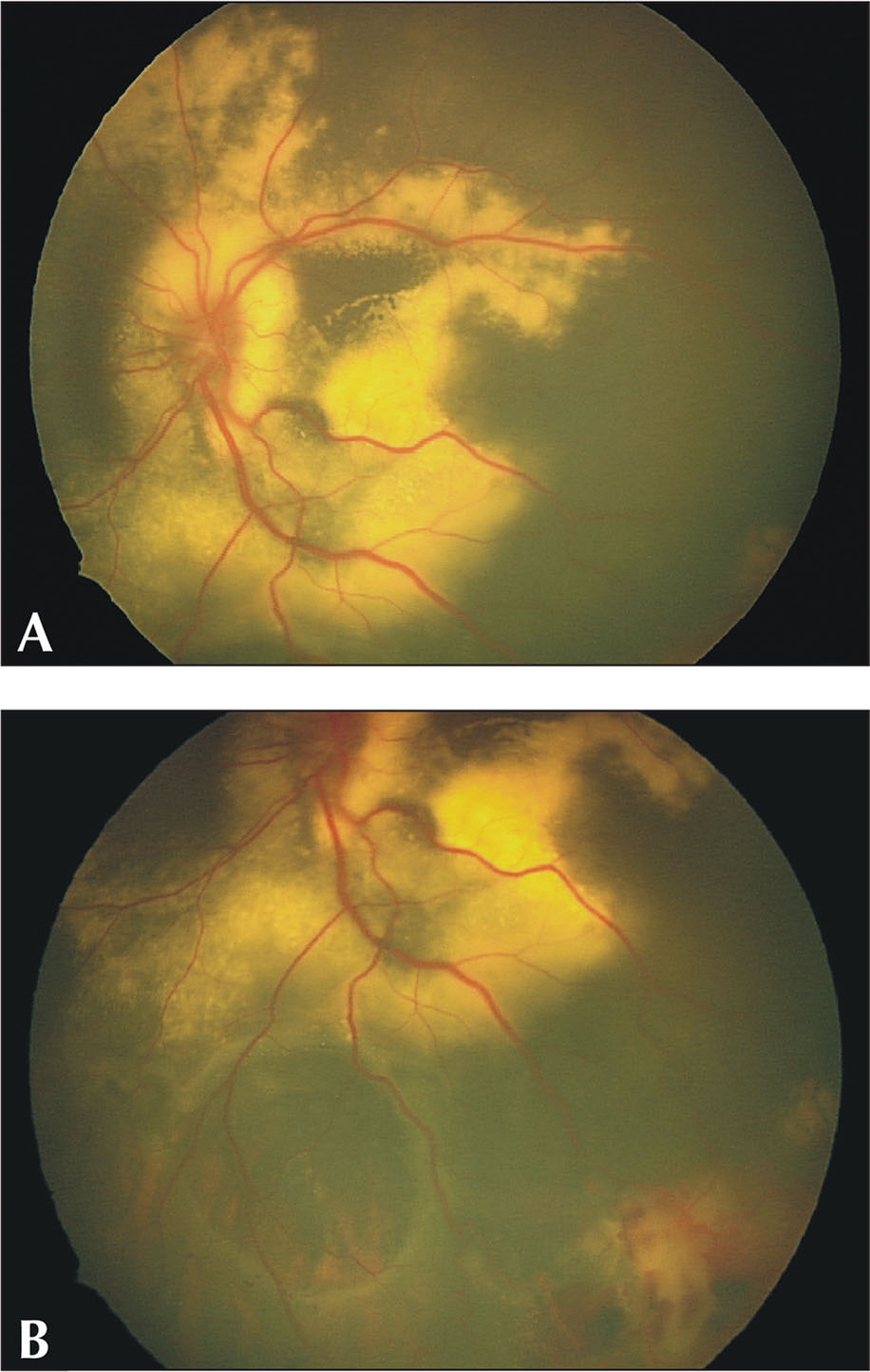 Initial presentation with (A) an extensive exudative retinal detachment and (B) early macrocyst formation.