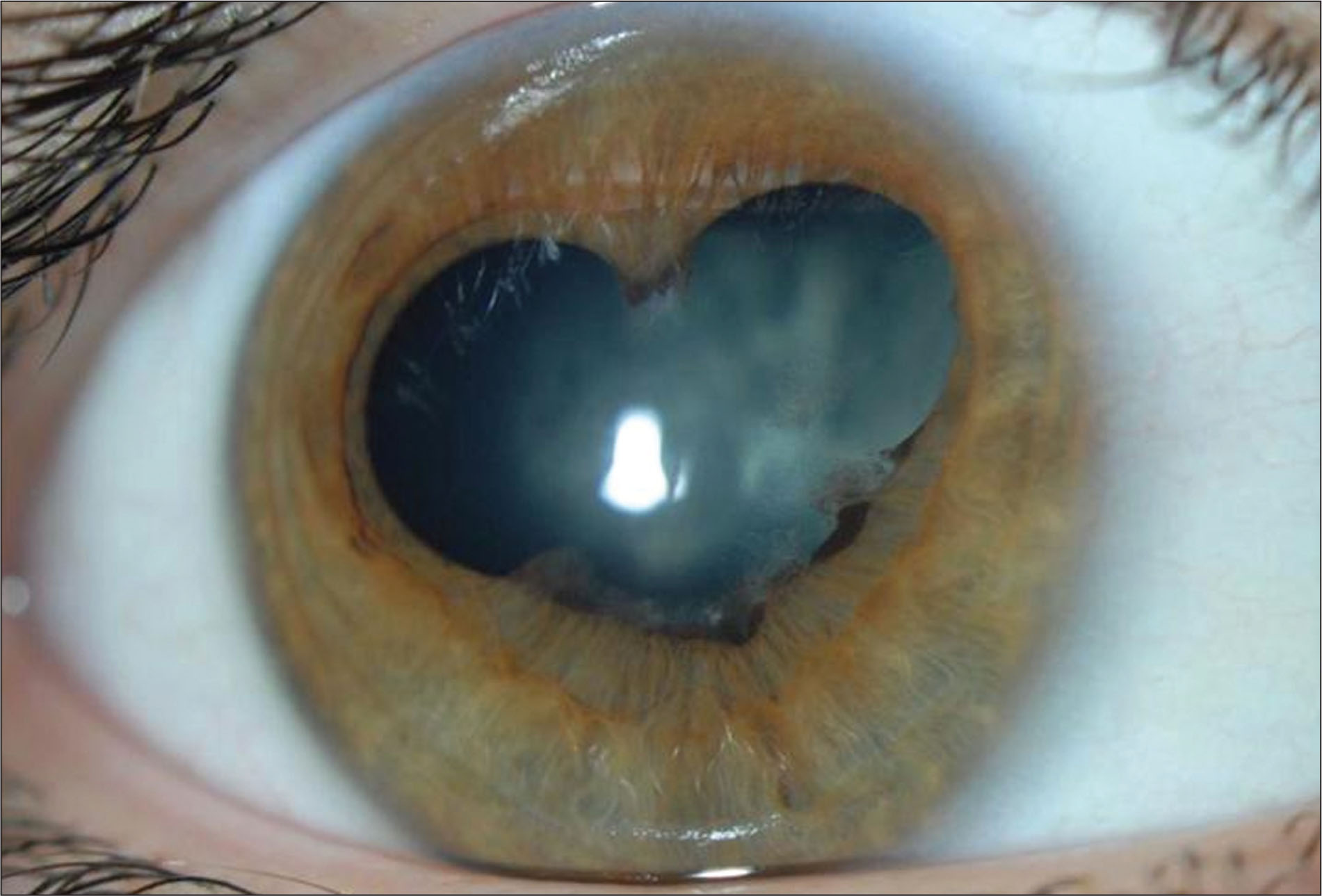 Heart-Shaped Pupil Secondary to Posterior Synechiae in a 13-Year-Old Girl with Uveitis Associated with HLA-B27. This Patient's Birthday Is February 14, 1994.