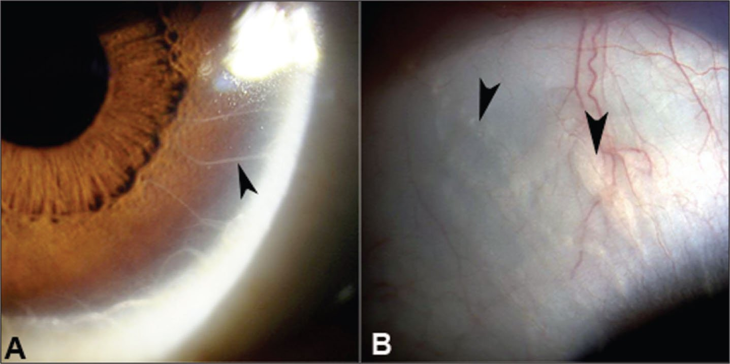 (A) the Patient's Left Eye Showing Extremely Thickened Peripheral Corneal Nerves Extending to the Mid-Corneal Region (arrow Head). (B) the Patient's Right Eye Showing Subconjunctival Plexiform Neuromas (arrow Heads).
