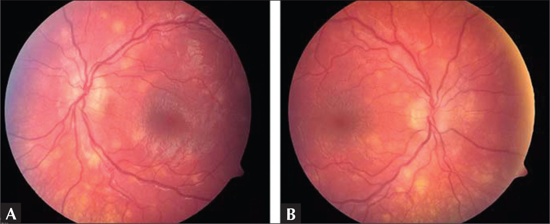 Color Fundus Photographs of the (A) Left Eye and (B) Right Eye Demonstrating Chorioretinal Lesions.