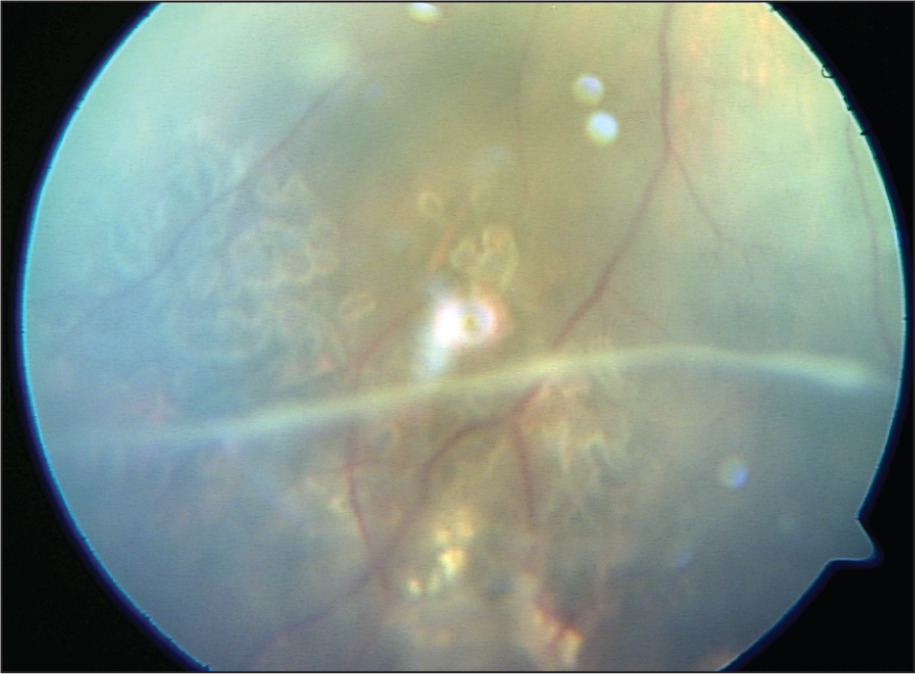 Color Fundus Photograph of Inferior Peripheral Retina 3 Weeks After Retinal Photocoagulation.