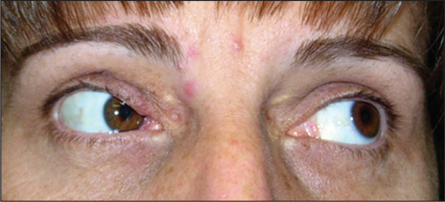 Postoperative Clinical Photograph Showing Traumatic Brown Syndrome Evidenced by Limited Elevation in Adduction.