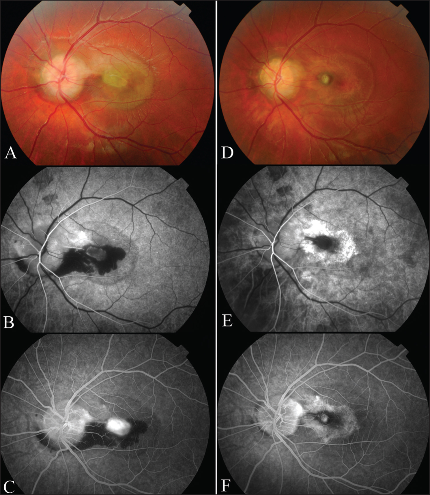 Color Fundus and Fluorescein Angiogram Images from the Left Eye at Presentation (A, B, C) and After 3 Months of Treatment (D, E, F). B and E = Early Fluorescein Angiogram Images; D and F = Late Fluorescein Angiograms. Images Show Marked Improvement in Clinical Appearance and Less Leakage at 3 Months. An Area of Retinal Pigment Epithelial Atrophy Has Appeared Around the Lesion.