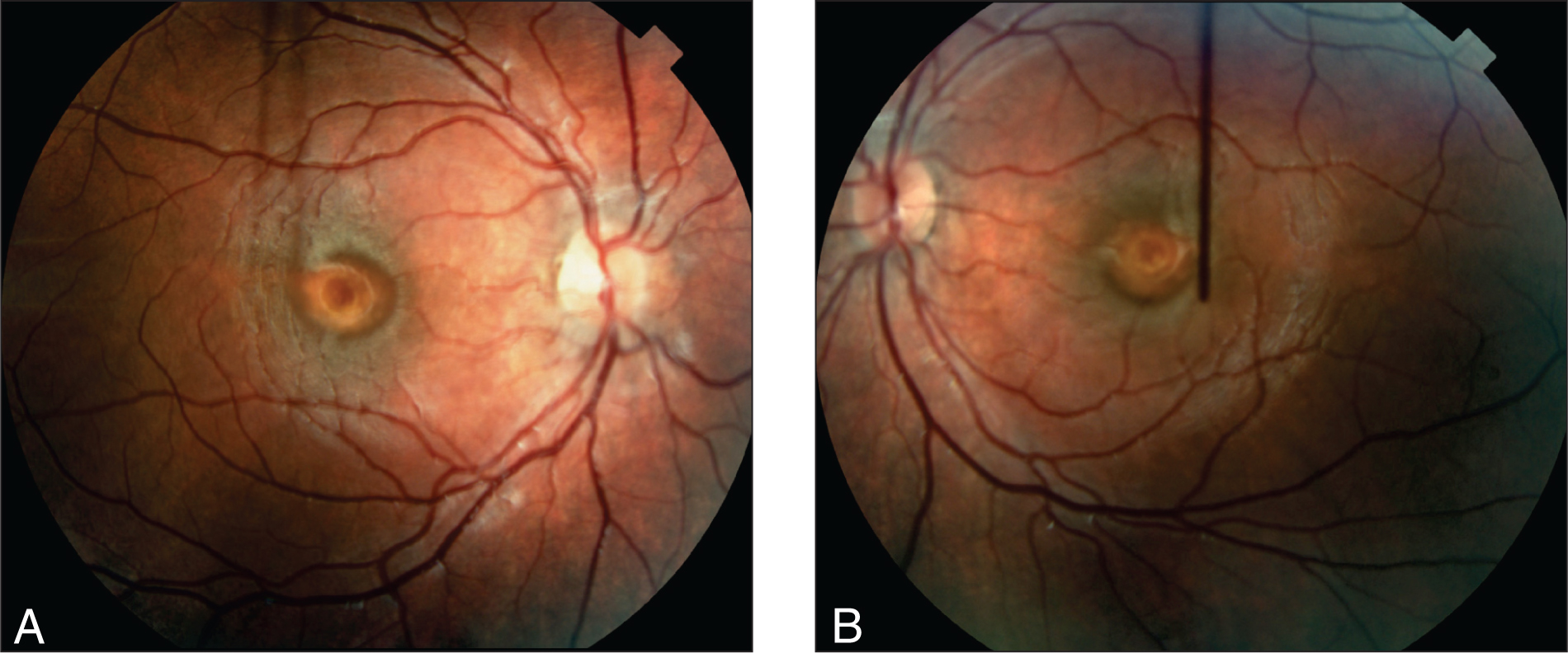 Right (A) and Left (B) Fundus Photographs of the Bilateral Vitelliform Lesions in the Patient at Age 20 Months.