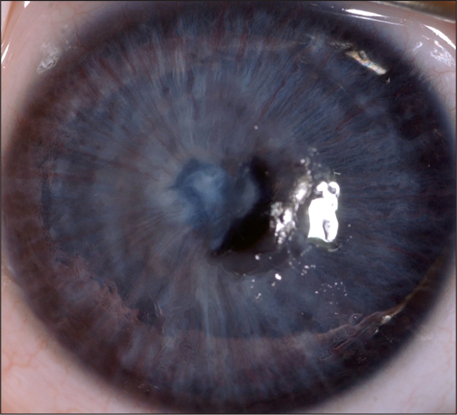 Intraoperative Photograph Showing the Pupillary-Iris-Lens Membrane.