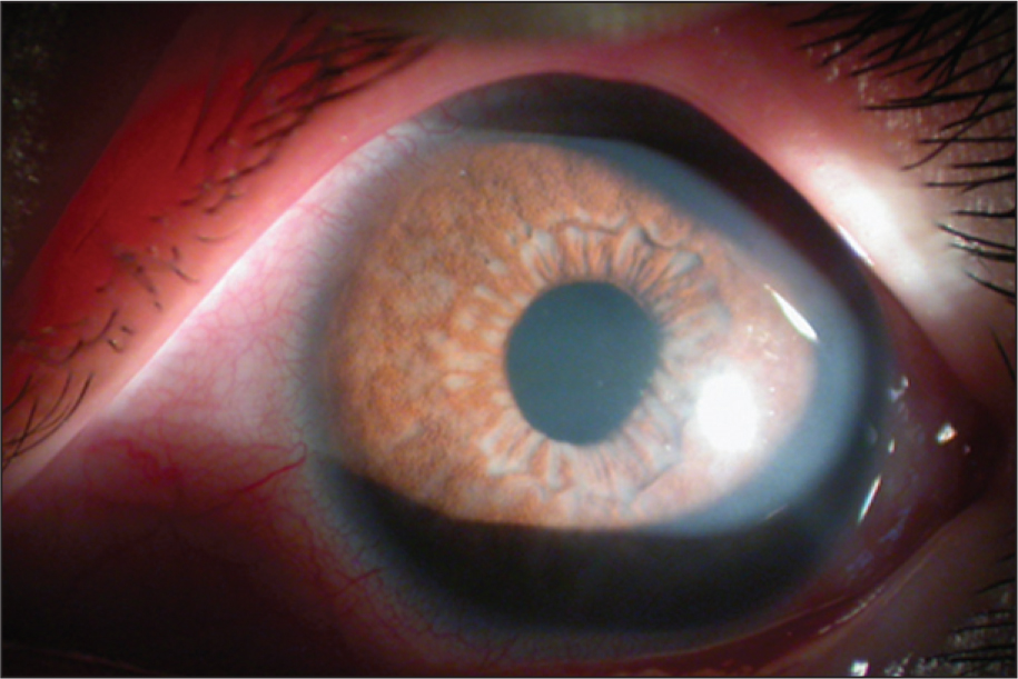 Anterior Segment Photography of the Left Eye Showed Conjunctival Injection, Hypopyon, and a Cream-Colored Membrane Covering the Iris.