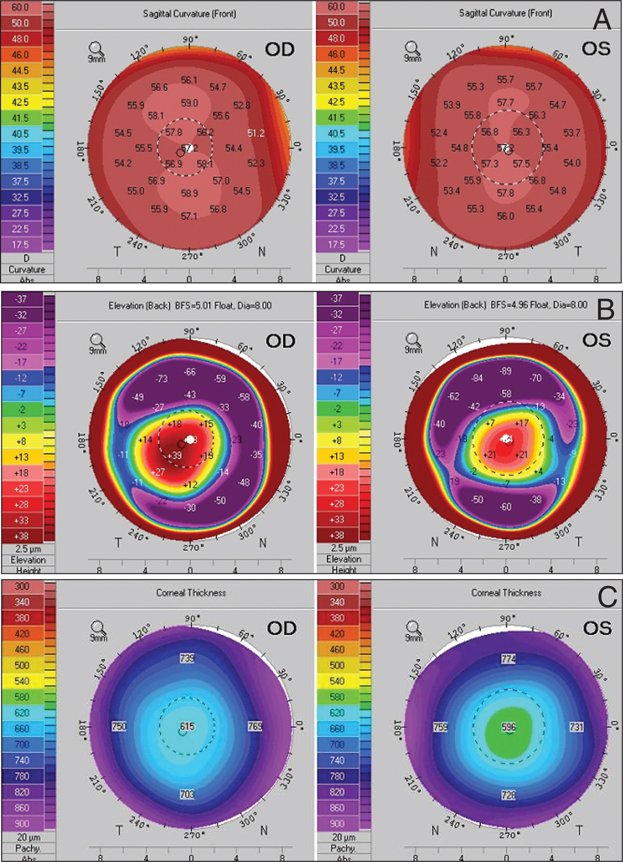 Pentacam (Pentacamhr; Oculus Optikgreräte GmbH, Wetzlar, Germany) Data of the Corneas of Both Eyes. (A) Sagittal Curvature Map Showing Diffusely Steep Corneas. (B) Posterior Elevation Map to Best Fit Sphere Showing Central Elevation. (C) Corneal Thickness Map Demonstrating Thick Corneas.