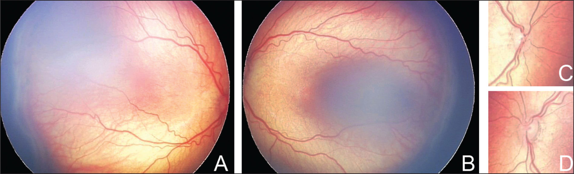 Zone III Stage 3 Retinopathy of Prematurity with plus Disease Developed at Postmenstrual Age 38 4/7 Weeks in a Former 30 6/7-Week Infant with a Birth Weight of 1,692 g. Vascularized Ridge Temporally in (A) the Right Eye and (B) the Left Eye. Arterial Tortuosity and Venous Dilatation, Centered on the (C) Right and (D) Left Optic Discs.