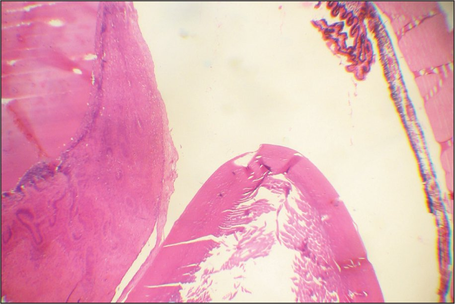 Histologic Section of the Enucelated Eye Showing Proliferation of the Retina on the Left and Normal Sclera on the Right (Hematoxylin–Eosin, Original Magnification ×50).