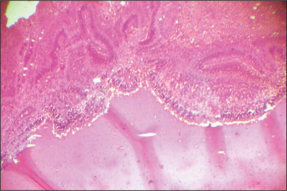 Formation of Straight Branching Tubes and Rosette-Like Structure in the Abnormally Proliferated Retina (Hematoxylin–Eosin, Original Magnification ×400).